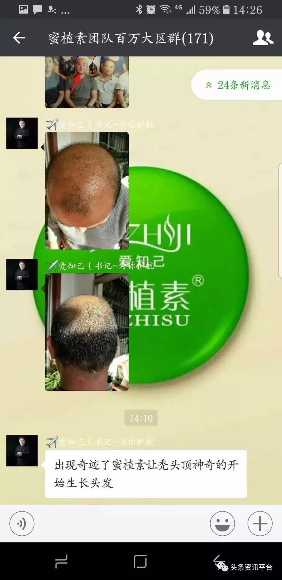 """号称""""秃头福音""""的蜜植素,频遭投诉原因为何?"""