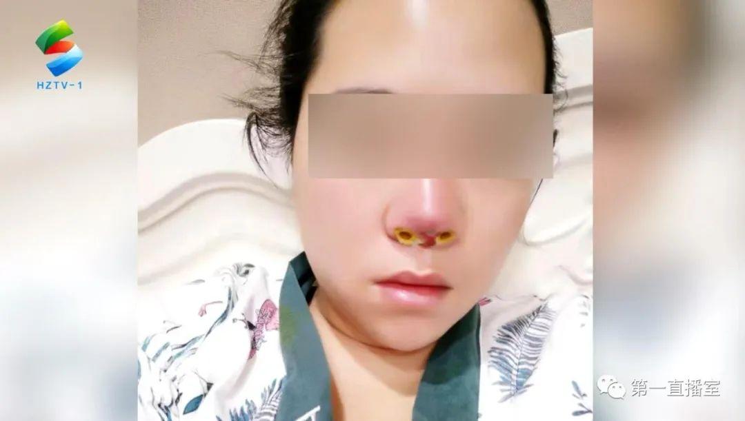 微整形要谨慎!隆鼻手术后假体刺穿鼻子   后遗症久久未愈